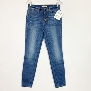 "Madewell | 10"" high rise skinny jeans button fly"